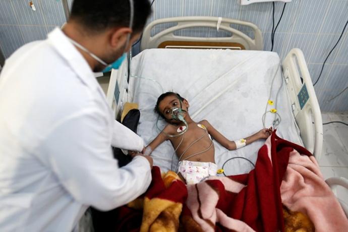 BM: Yemen'i Tamamen Saran Büyük Bir Kıtlık Tehlikesi Var